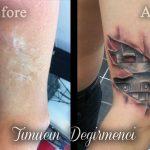 Dövme ile Faça, Ameliyat, Yanık ve Yara İzlerini Kapatma